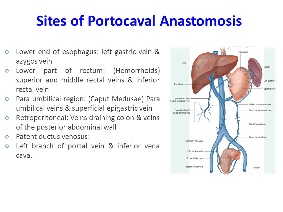 Sites of Portocaval Anastomosis