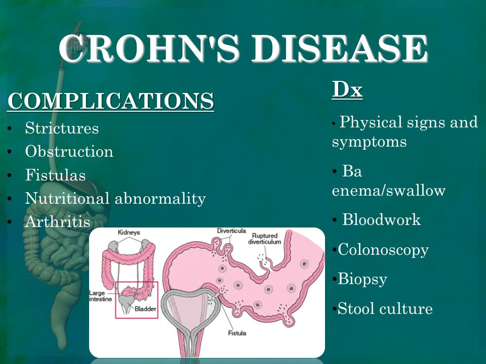 overview of crohns disease essay Crohns disease is a type of inflammatory intestine disease, ensuing in swelling and disfunction of the enteric piece of land crohn 's disease can impact any country of the gi piece of land, but it most normally affects the lower portion of the little bowel, called the ileum.