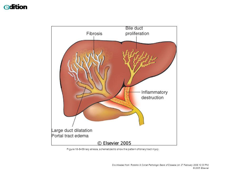 Biliary Tract Anatomy Choice Image - human body anatomy