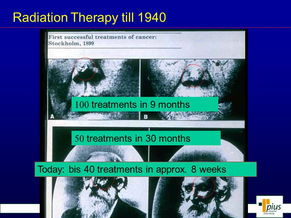 Radiation Therapy till 1940