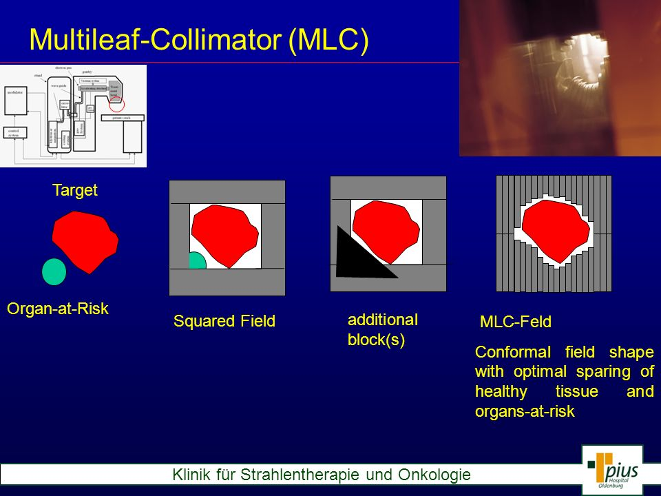 Multileaf-Collimator (MLC)
