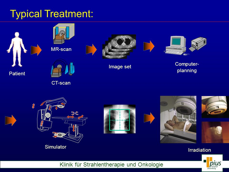 Typical Treatment: MR-scan Computer- Image set planning Patient