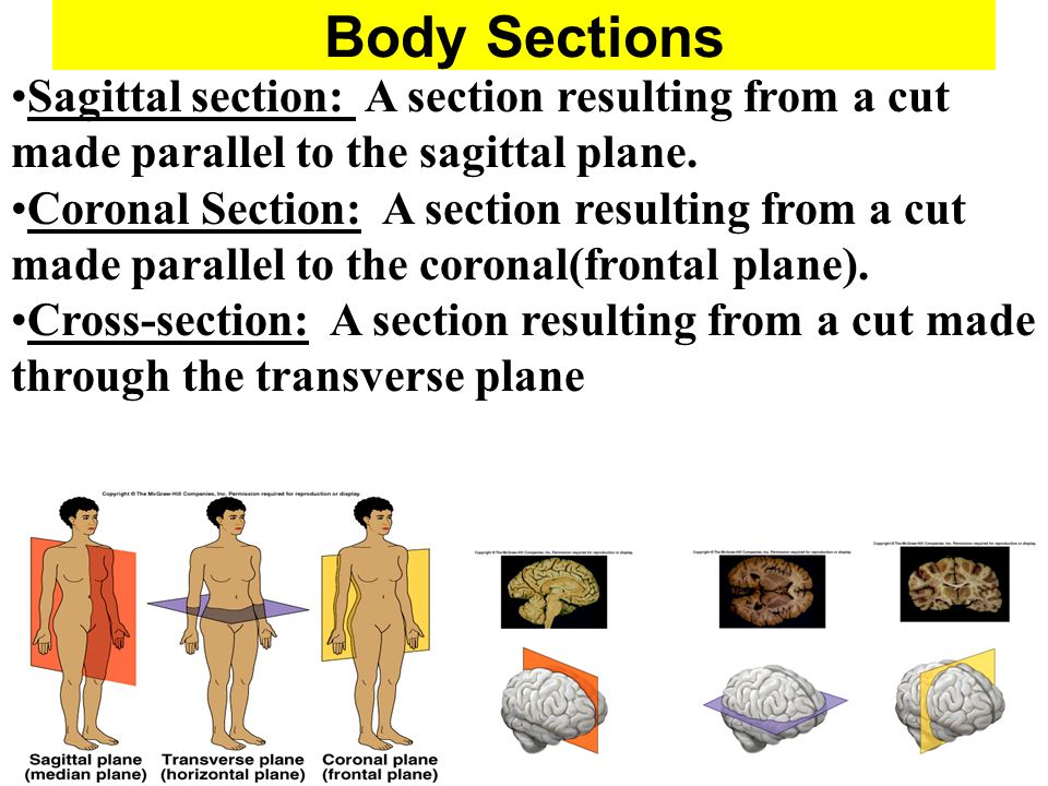 Body Sections Sagittal section: A section resulting from a cut made parallel to the sagittal plane.
