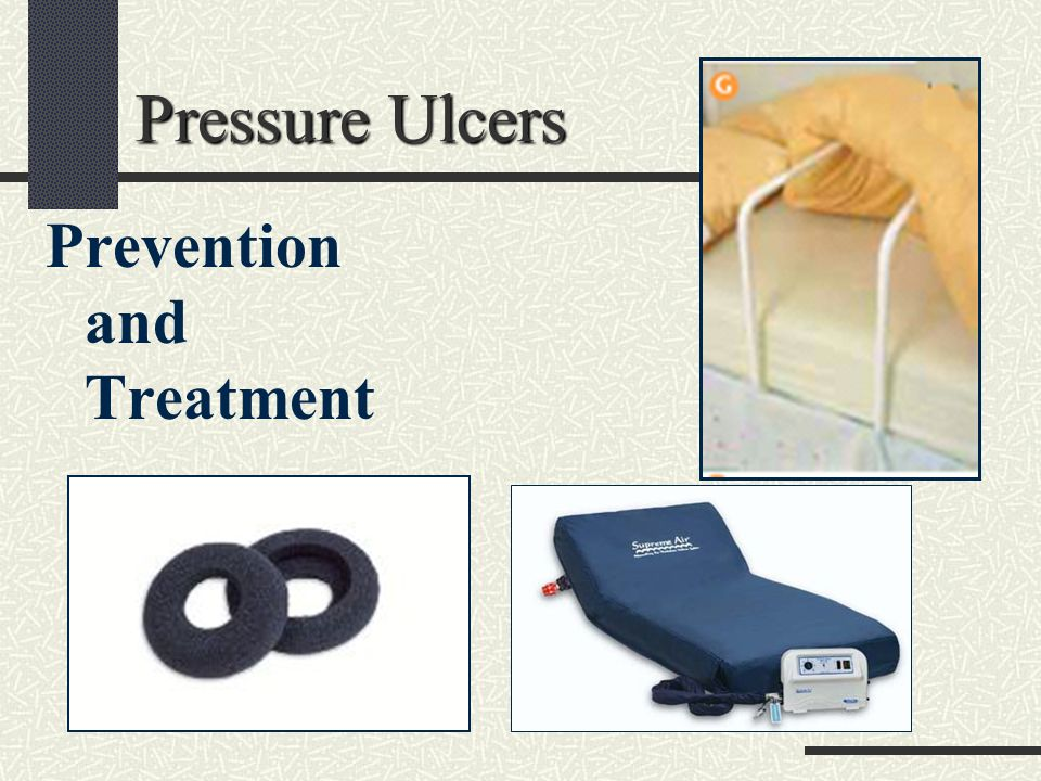 prevention and treatment of pressure ulcers Nutrition therapy in the prevention and  aid in pressure ulcer prevention and  approaches in the prevention and treatment of pressure ulcers.