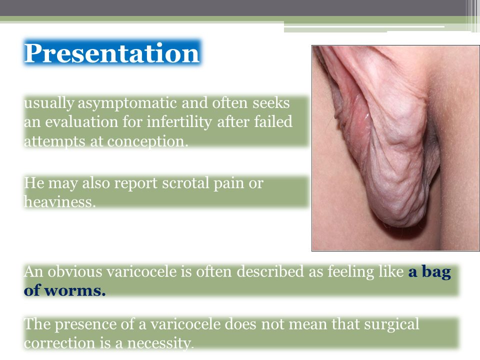 Presentation usually asymptomatic and often seeks an evaluation for infertility after failed attempts at conception.