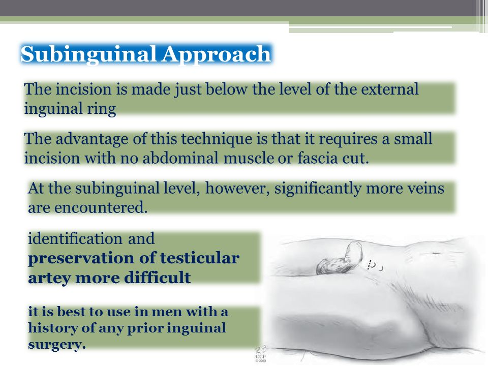 Subinguinal Approach The incision is made just below the level of the external. inguinal ring.