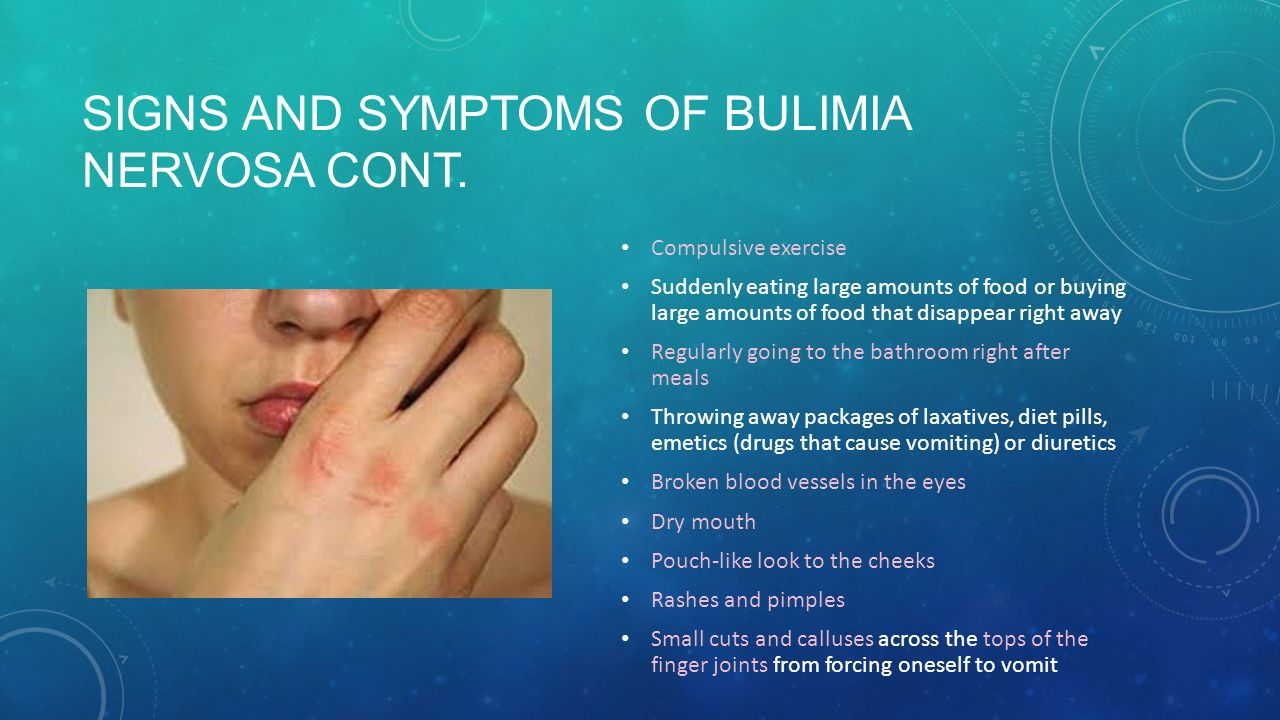 understanding of what is bulimia National council on strength & fitness 1 understanding clients with bulimia nervosa physical symptoms •calluses, sores, or abrasions on fingers or back of.