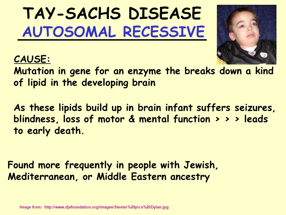 what is tay sachs disease essay Read tay-sachs disease free essay and over 88,000 other research documents tay-sachs disease abstract tay-sachs disease is a.