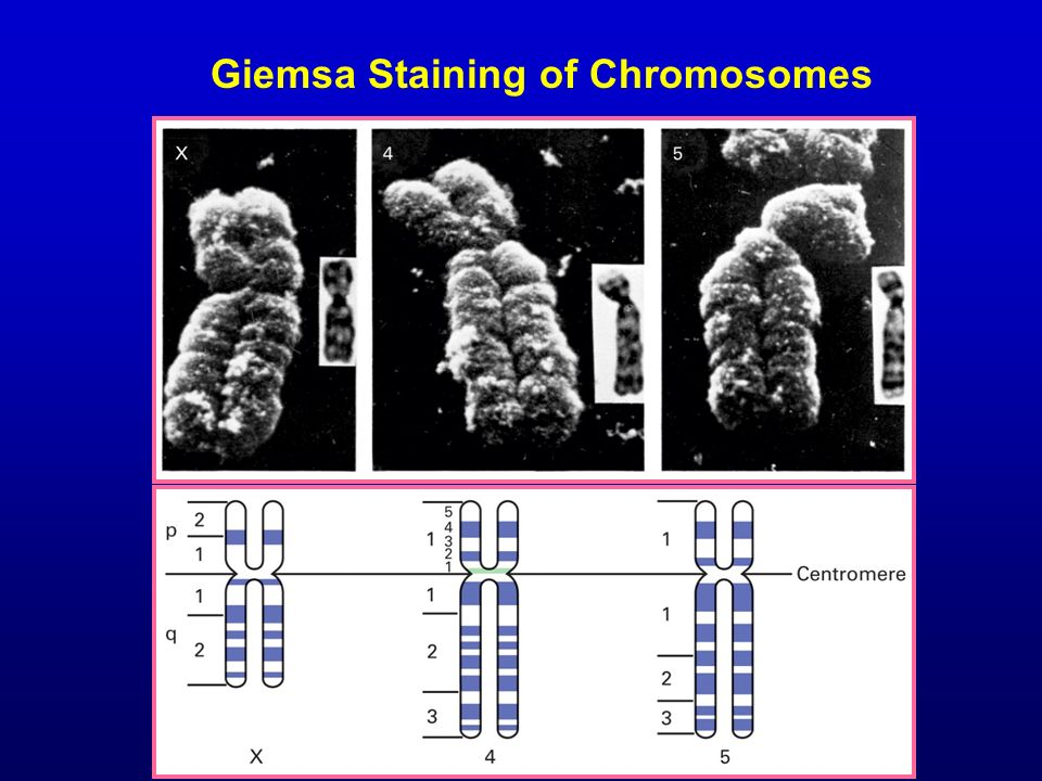Giemsa Staining of Chromosomes