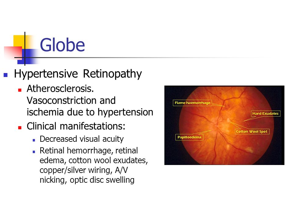 Board review ophthalmology ppt video online download