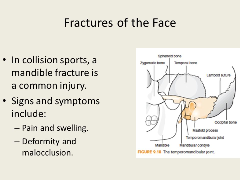 Injuries To The Head, Neck, And Face  Ppt Video Online. Welding Schools In Virginia Audi A4 Handbuch. Advertising Through Social Media. Heroin Addiction Rehab Centers. How To Back Up Files On Windows Xp. Fast Internet Speed Mbps Csn Chicago Channel. United Health Care For Providers. University Of Houston Victoria. Milk Allergy Symptoms In Infants