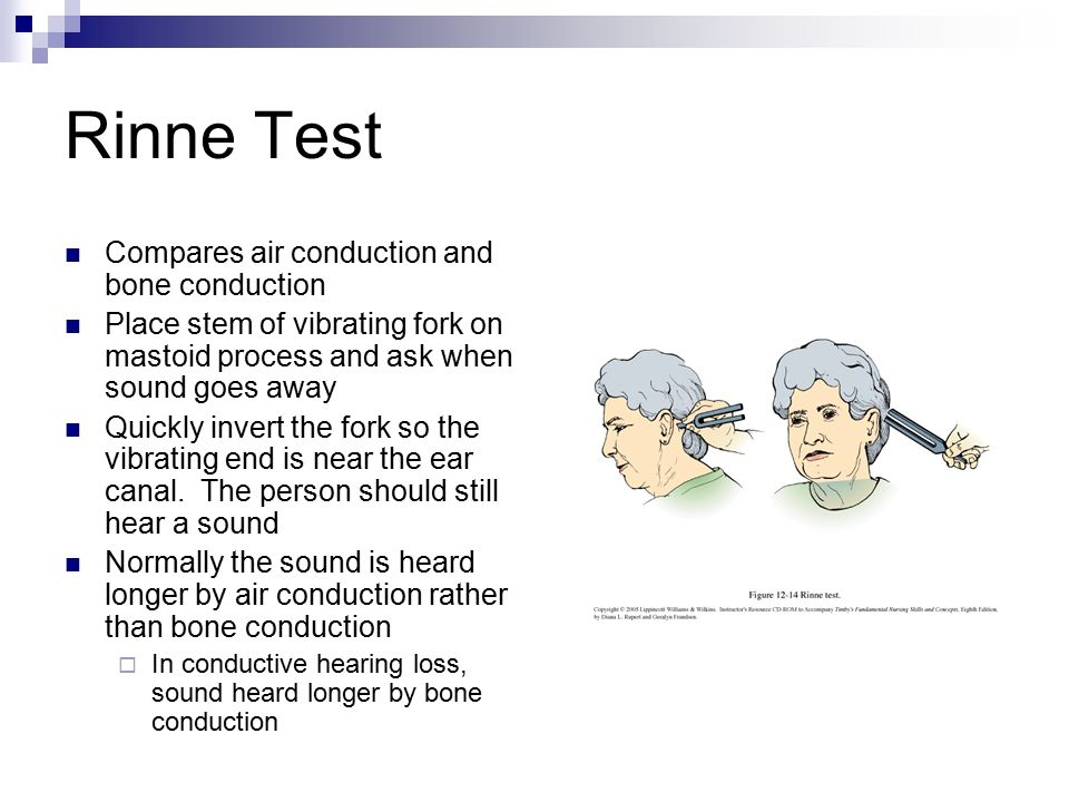 assessment of eyes and ears - ppt video online download, Skeleton