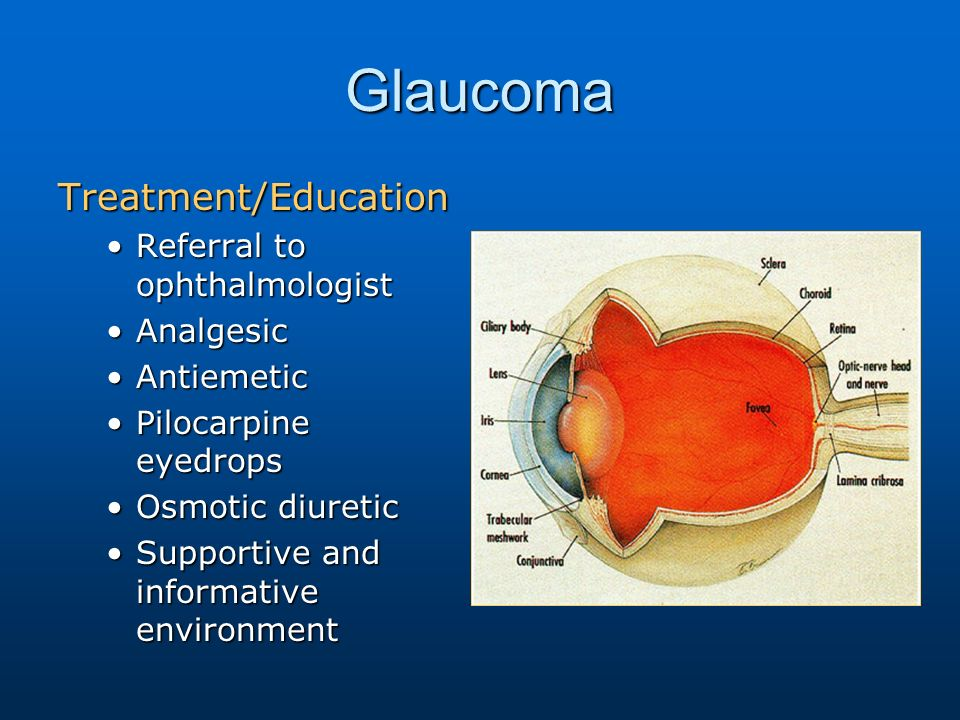 Ocular Emergencies Ppt Video Online Download