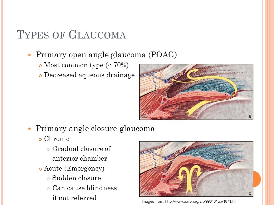 Glaucoma And Viagra