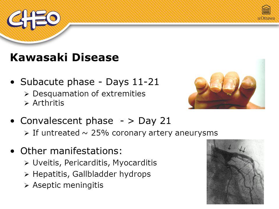 Atypical Kawasaki Disease Aap