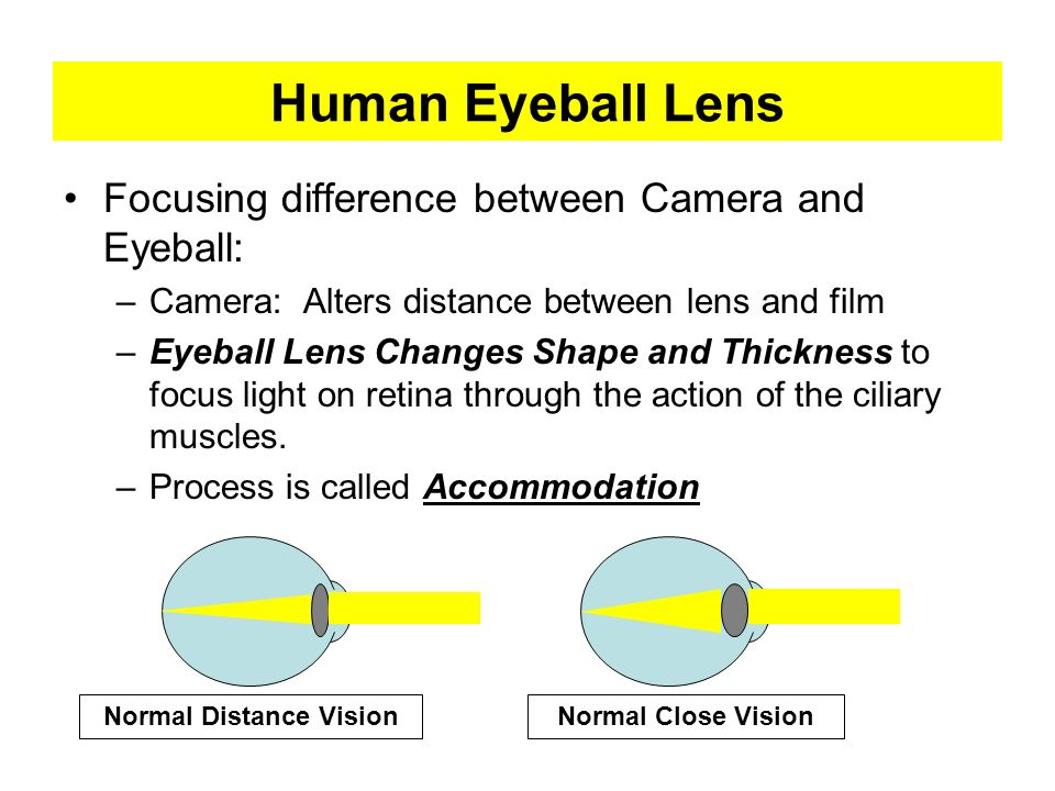 Normal Distance Vision