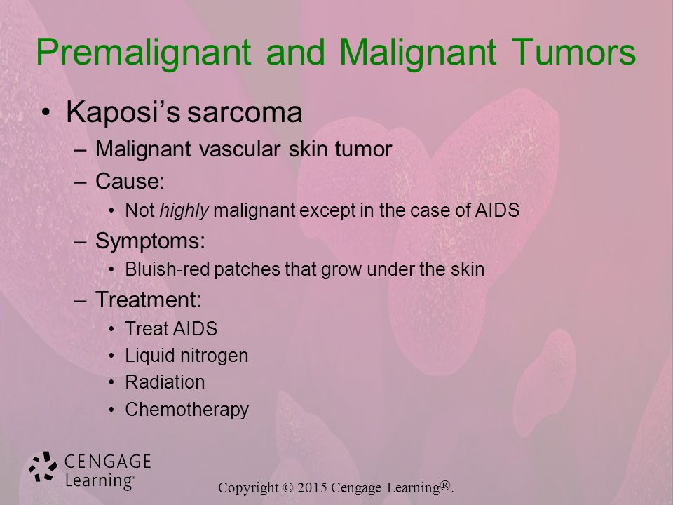 kaposi s sarcoma a vascular malignant tumor Kaposi's sarcoma purpuraceous macules on the upper and lower extremities of a middle-aged man in a case of kaposi's sarcoma kaposi's sarcoma is a relatively rare malignant skin tumour, which results in purple-coloured plaques that eventually form nodules it is a type of malignant neoplasm.