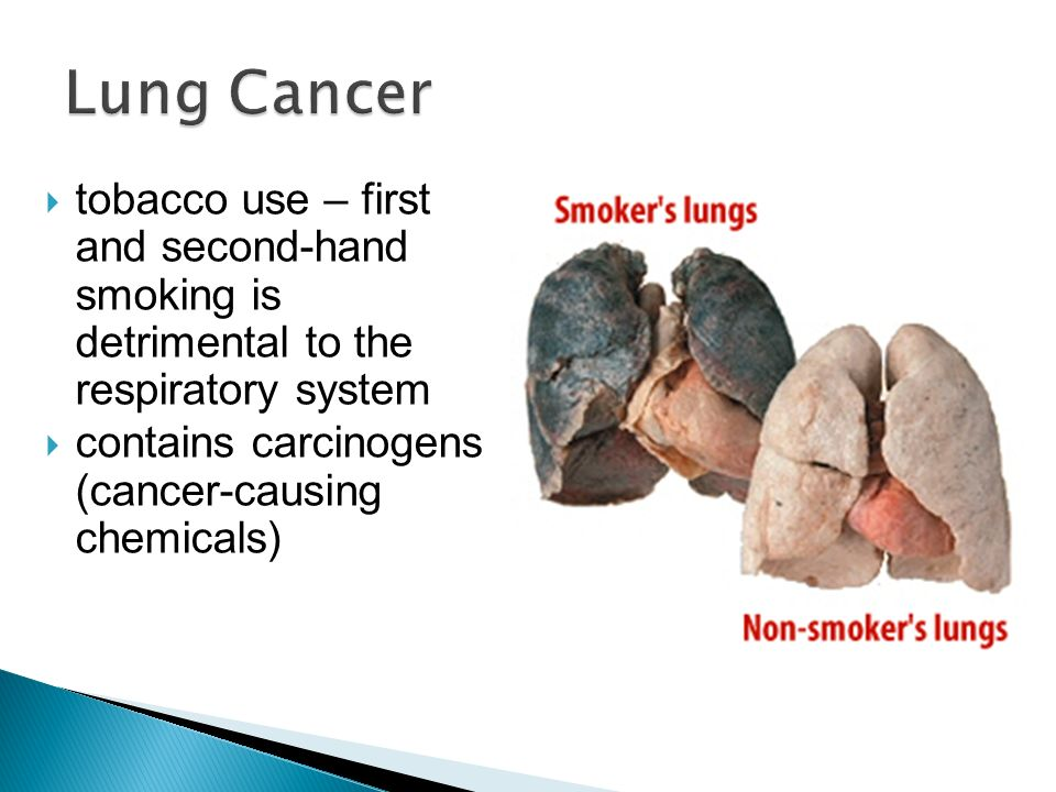 tobacco use and lung cancer Tobacco use and lung cancer - lay summary and main messages to communicate to media and the public lung cancer is the #1 cancer killer in the world, killing more people than breast, colorectal and prostate cancers combined.