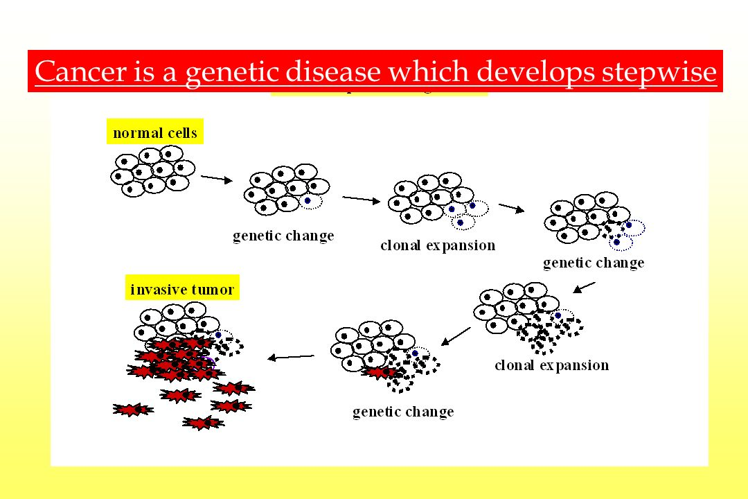 Cancer is a genetic disease which develops stepwise
