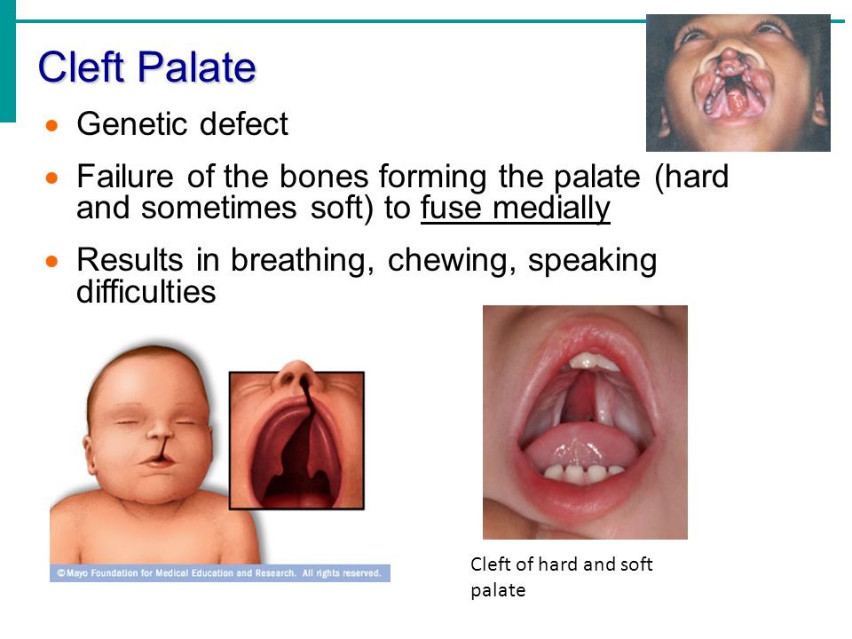 Cleft Palate Genetic defect