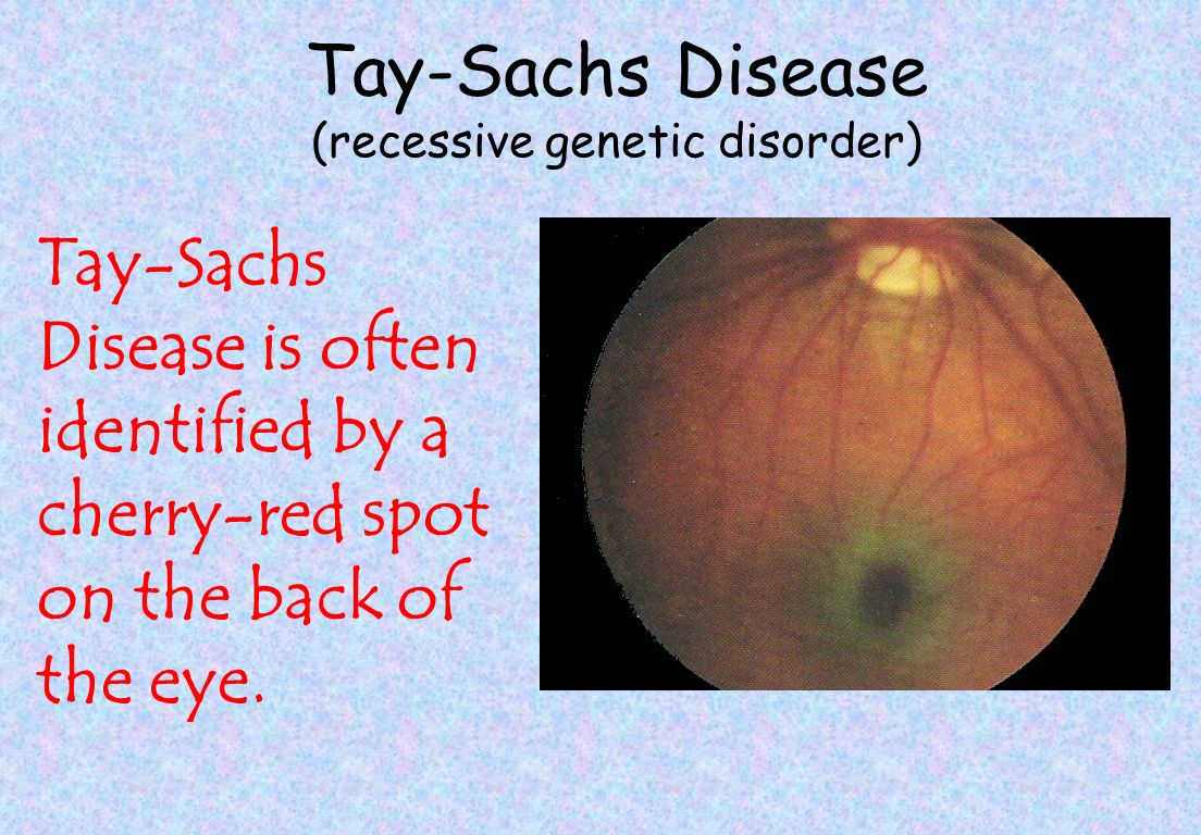 """the tay sachs genetic disorder Expanded screening panels by jscreen makes for easy """"spit kit"""" testing of 200 diseases september is tay-sachs awareness month, an urgent reminder for people to get tested for genetic diseases so they can make informed decisions about family planning expanded screening panels now enable for."""