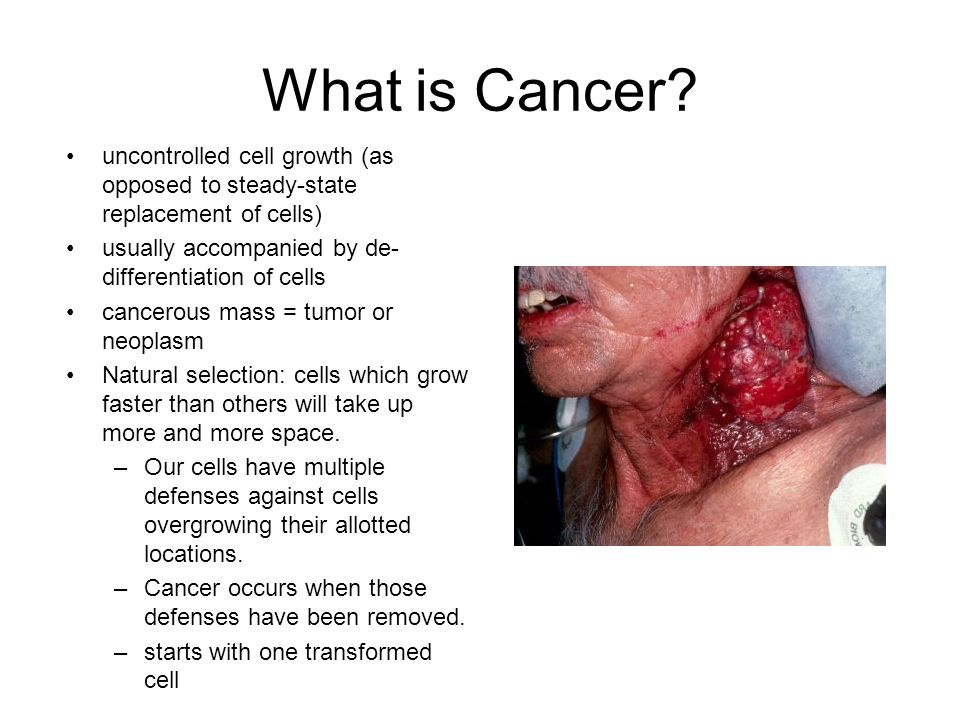 What is Cancer uncontrolled cell growth (as opposed to steady-state replacement of cells) usually accompanied by de-differentiation of cells.