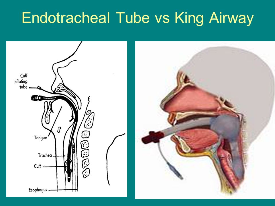 et tubes vs lma This randomized clinical trial compares the effect on first-attempt success of intubation using a tracheal tube bougie introducer vs endotracheal tube with styl.