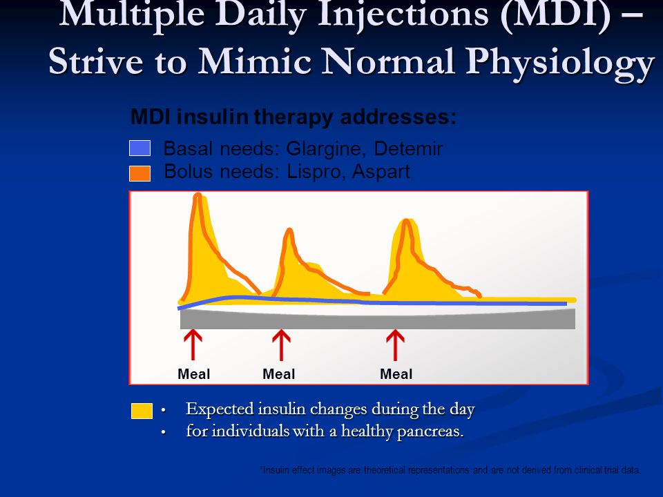 Multiple Daily Injections (MDI) – Strive to Mimic Normal Physiology