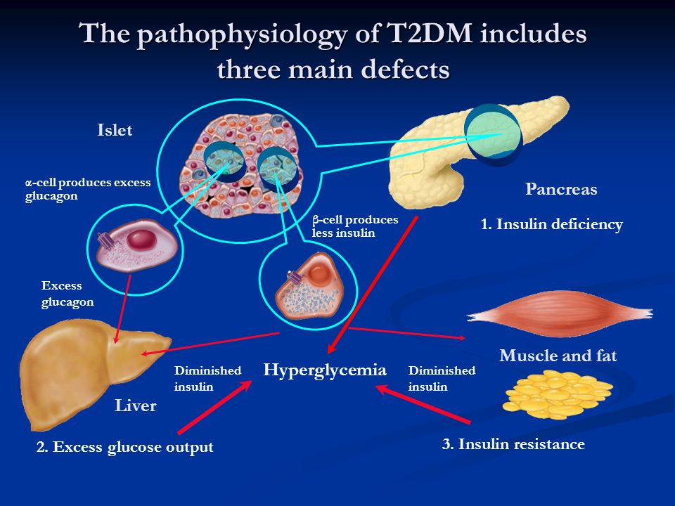 The pathophysiology of T2DM includes three main defects