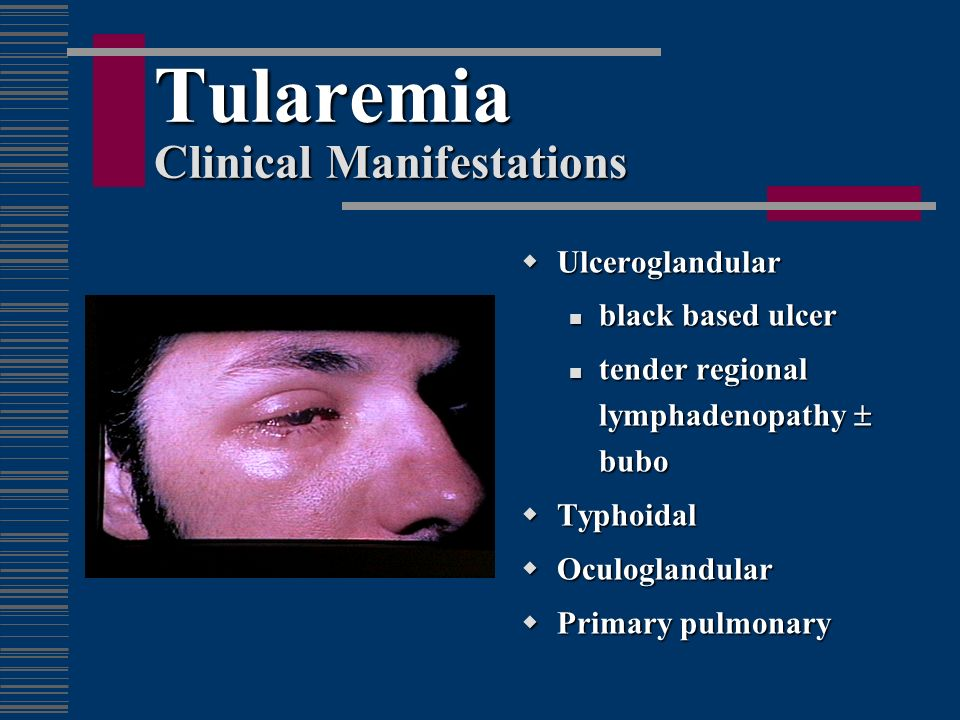 Tularemia Clinical Manifestations