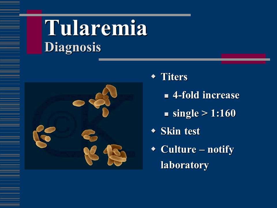 Tularemia Diagnosis Titers 4-fold increase single > 1:160 Skin test