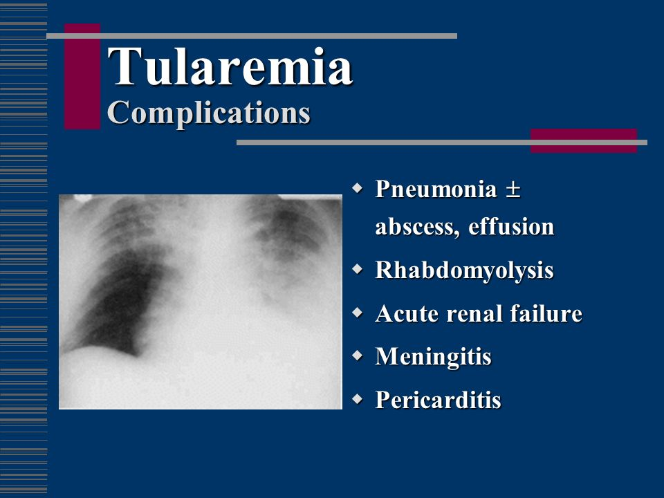 Tularemia Complications