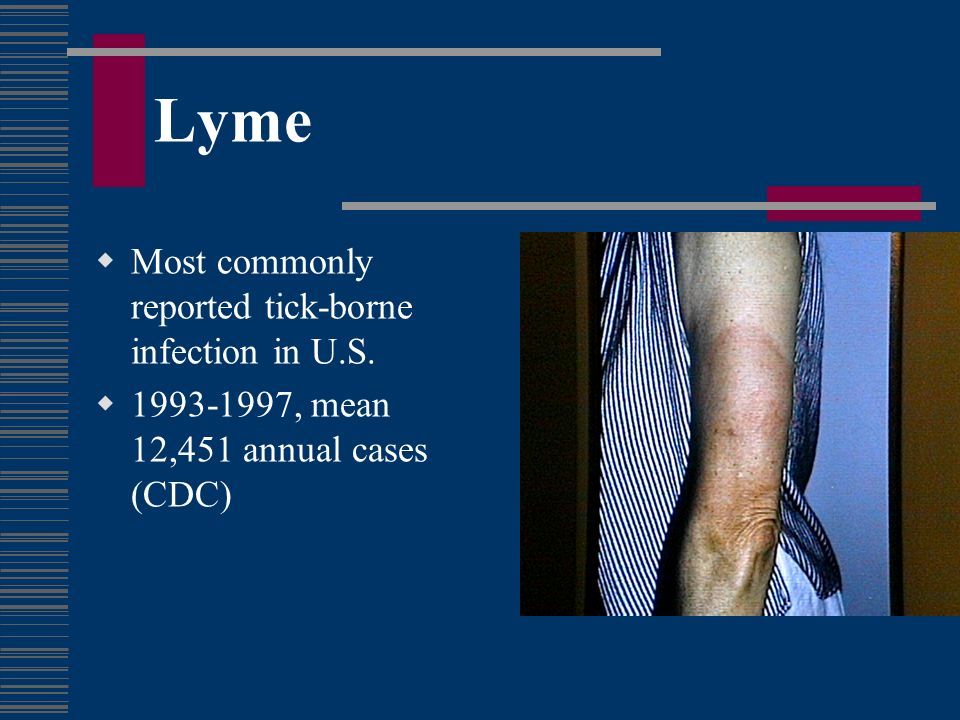 Lyme Most commonly reported tick-borne infection in U.S.