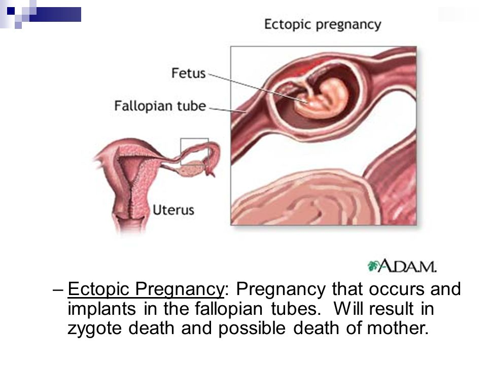Beautiful Anatomy And Physiology Of Ectopic Pregnancy Festooning ...