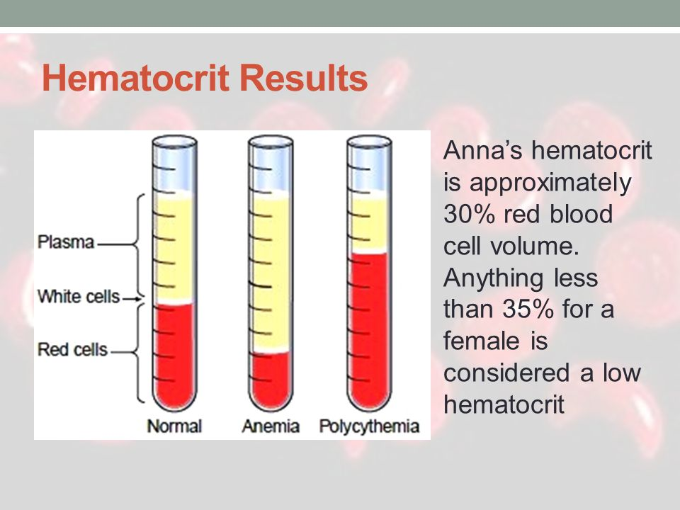 Hematocrit Results Anna's hematocrit is approximately 30% red blood cell volume.