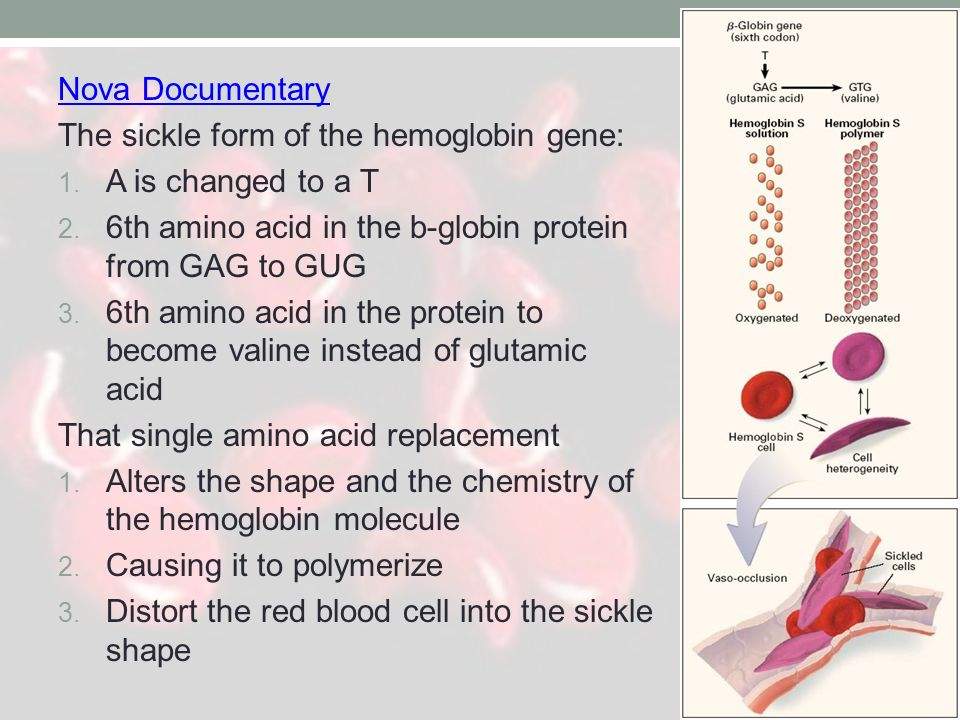 Nova Documentary The sickle form of the hemoglobin gene: A is changed to a T. 6th amino acid in the b-globin protein from GAG to GUG.