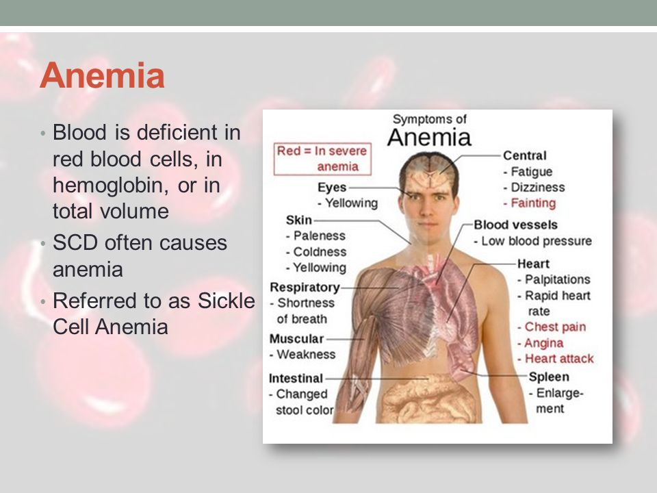 Anemia Blood is deficient in red blood cells, in hemoglobin, or in total volume. SCD often causes anemia.