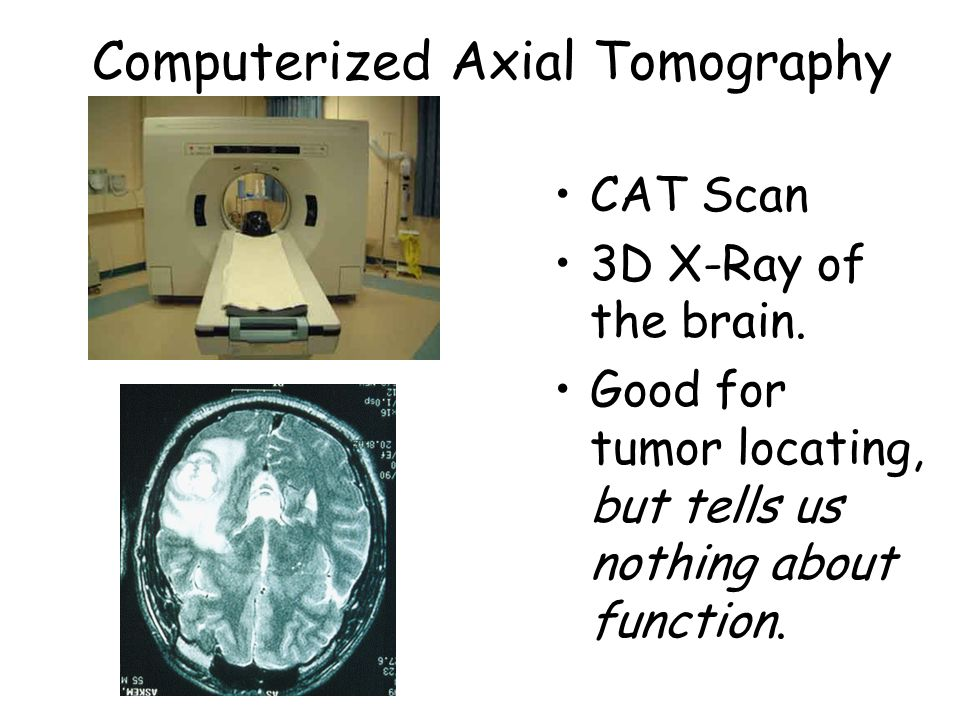 the use and function of positron emission tomography scanners essay Basic principles and applications of 18f-fdg-pet/ct in oral and maxillofacial  imaging: a pictorial essay  the principle of positron emission tomography (pet)  is that  to date, most clinical applications of pet scans have employed  data  of ct with the functional information of pet, offering improved.