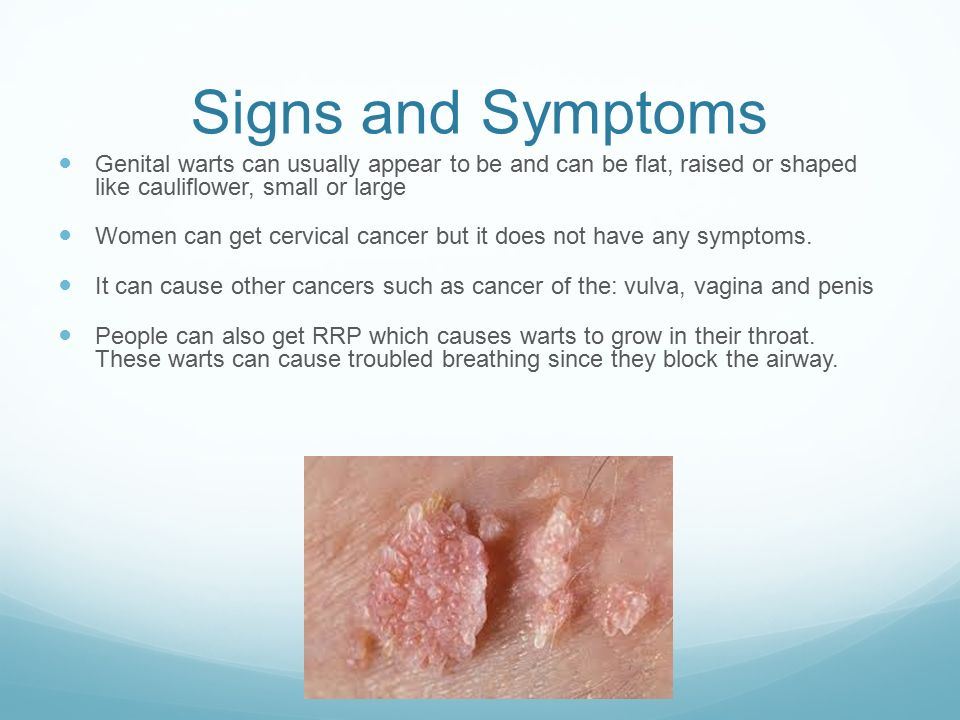 Can you get genital warts from oral - Answers on
