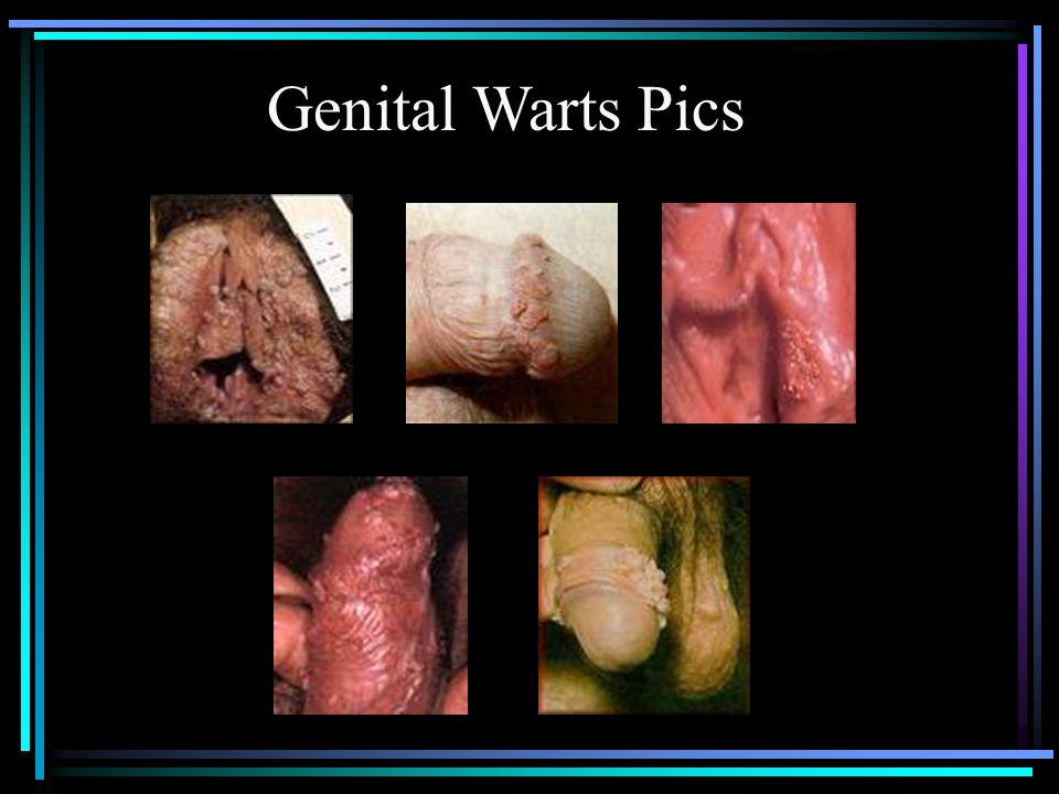 Genital Warts Pics