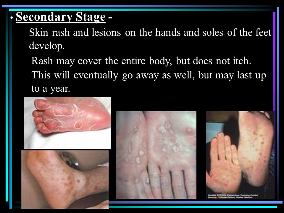 Skin rash and lesions on the hands and soles of the feet develop.
