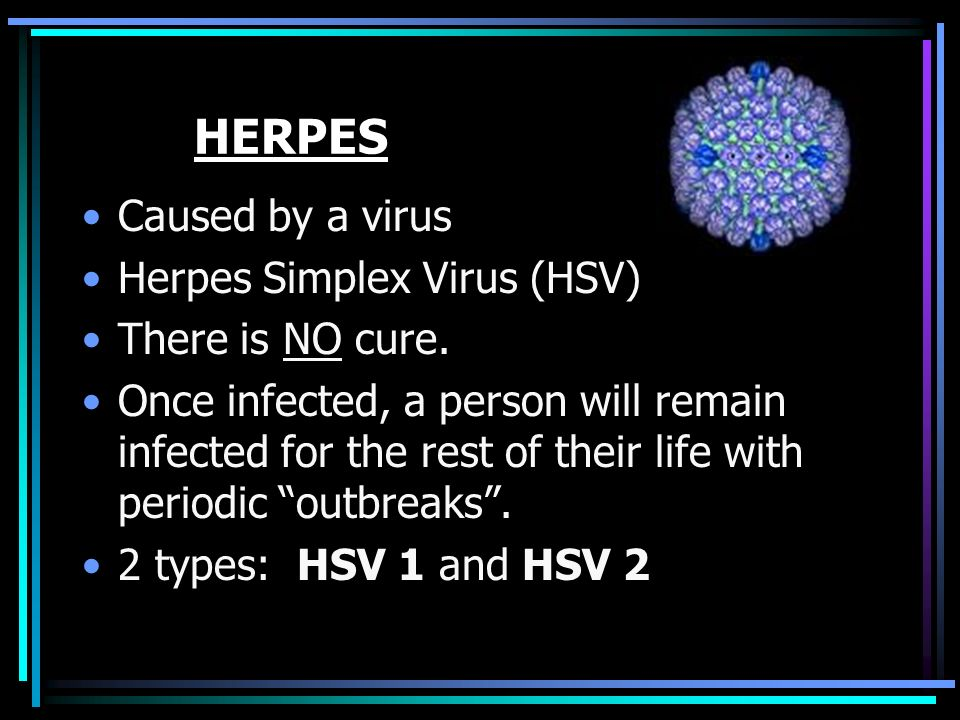 HERPES Caused by a virus Herpes Simplex Virus (HSV) There is NO cure.