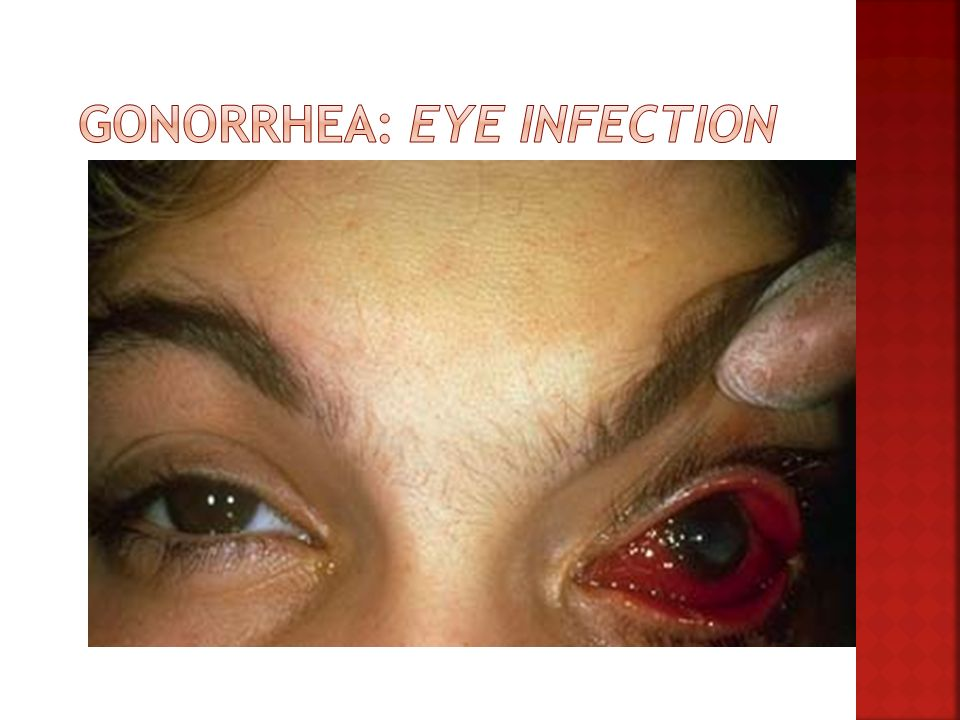 Gonorrhea: Eye Infection