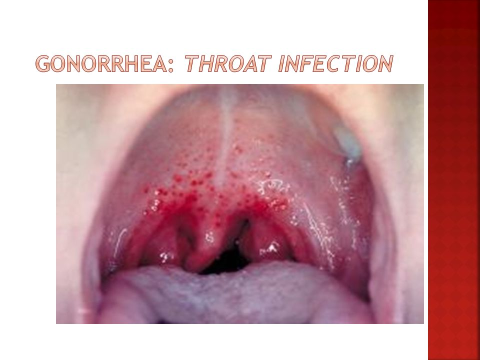 Gonorrhea: Throat Infection