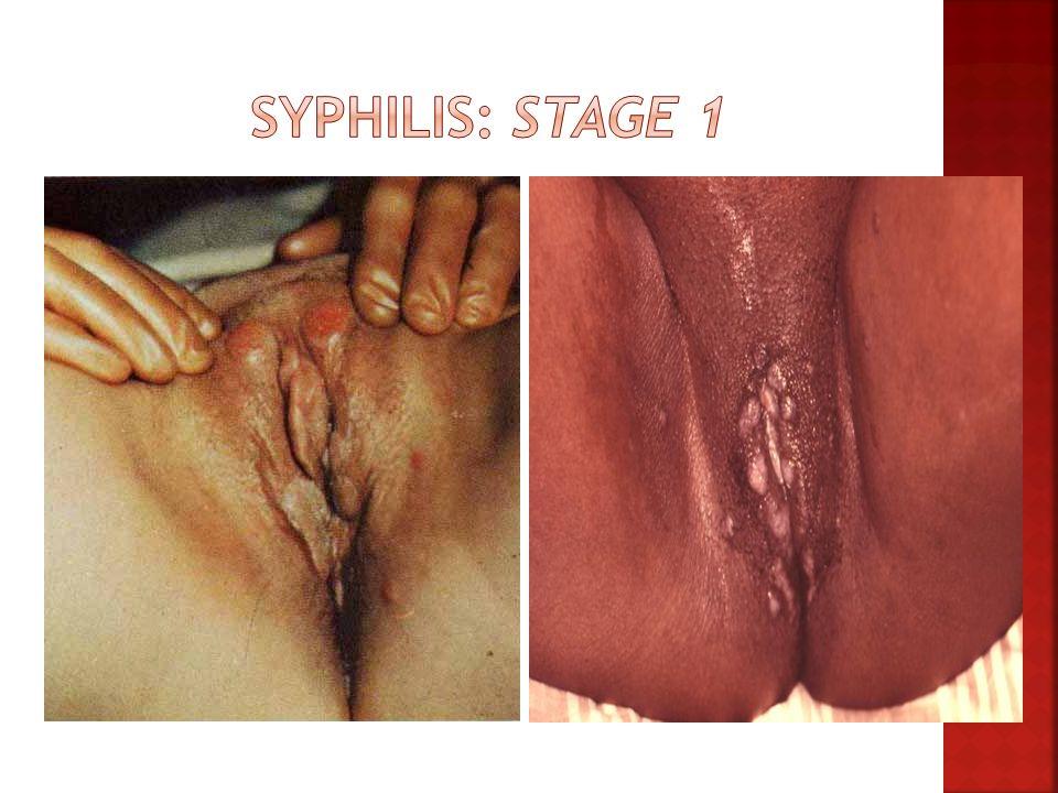 Syphilis: Stage 1