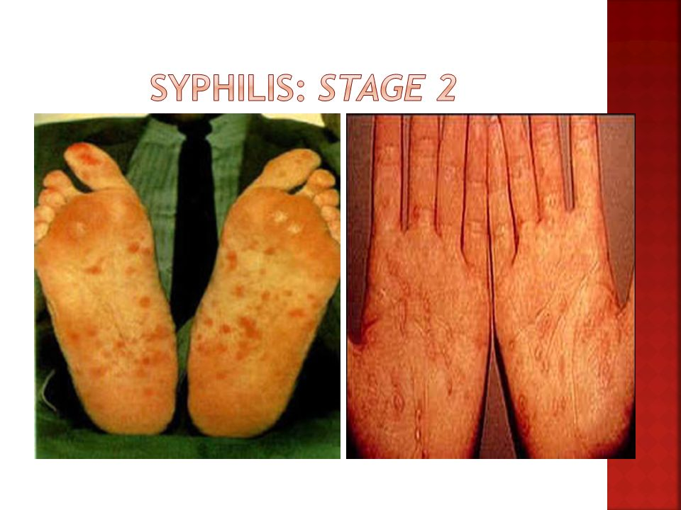 Syphilis: Stage 2