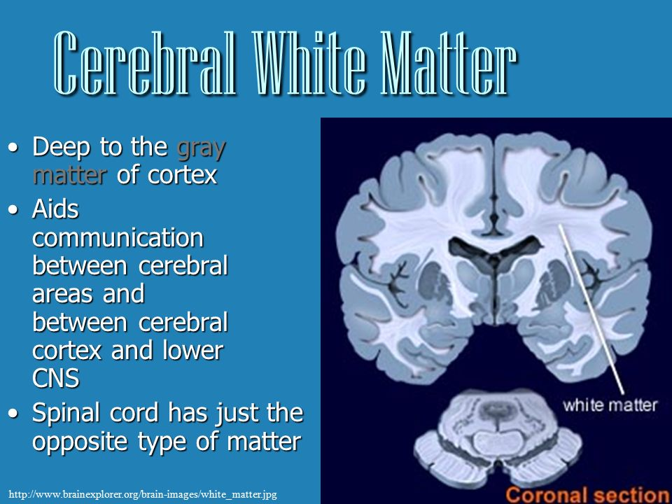 Summary -> What Is Deep White Matter With Pictures Wisegeekcom