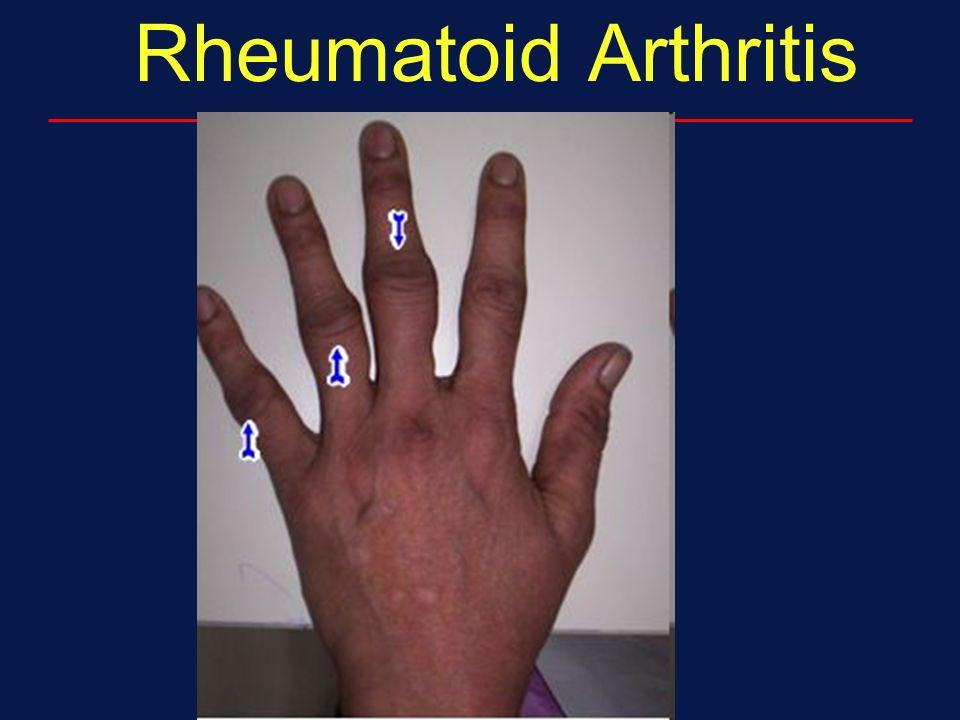 Copper rheumatoid arthritis