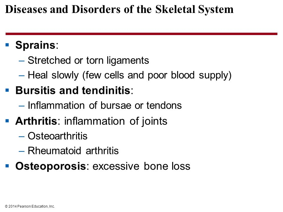 the skeletal system disease of osteoporosis Quiz & worksheet - skeletal system diseases quiz a characteristic of osteoporosis functions of the skeletal system medical terminology used for a broken bone.