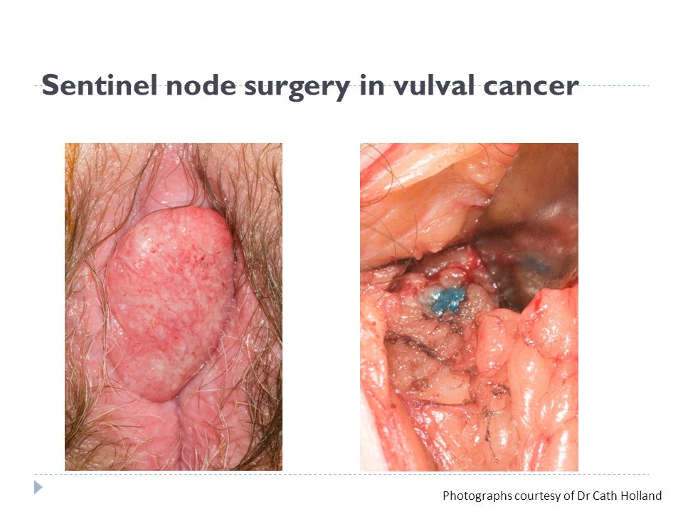 Of vulva carcinoma pictures